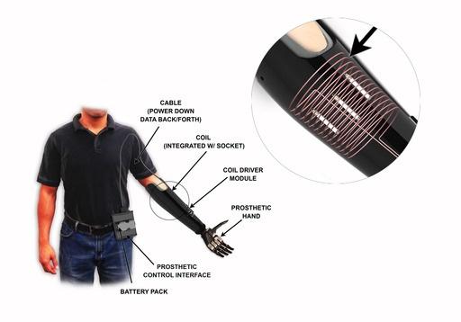 IMES implant illustration