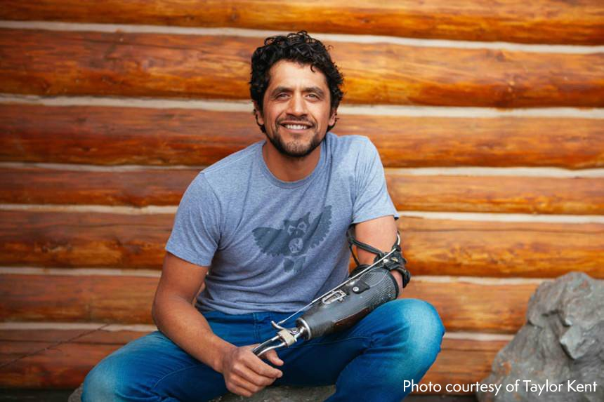 Arm Dynamics patient Eduardo Garcia wearing his body powered prosthesis