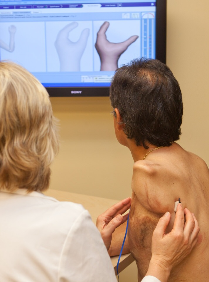 Arm Dynamics patient and clinician testing myoelectric pickup sites