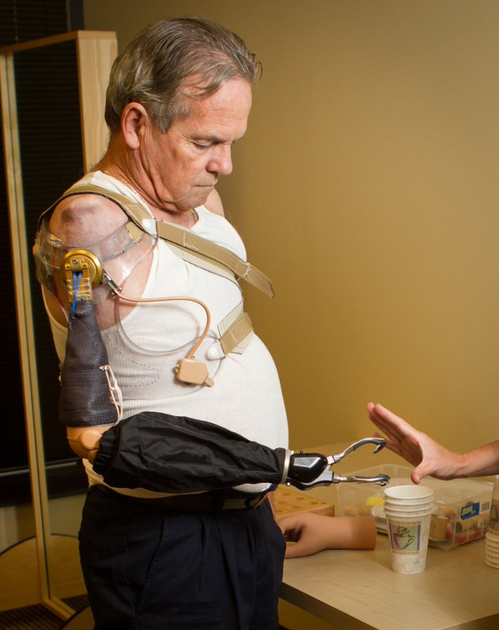 Arm Dynamics patient wearing a Dynamic Arm Elbow