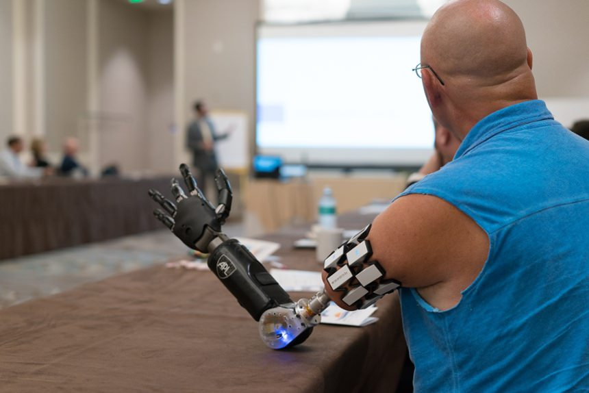 Osseointegration amputee participating in Arm Dynamics' upper limb prosthetic symposium