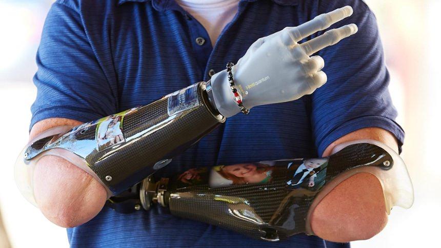 Carbon Fiber Socket Frame with i-limb Hand