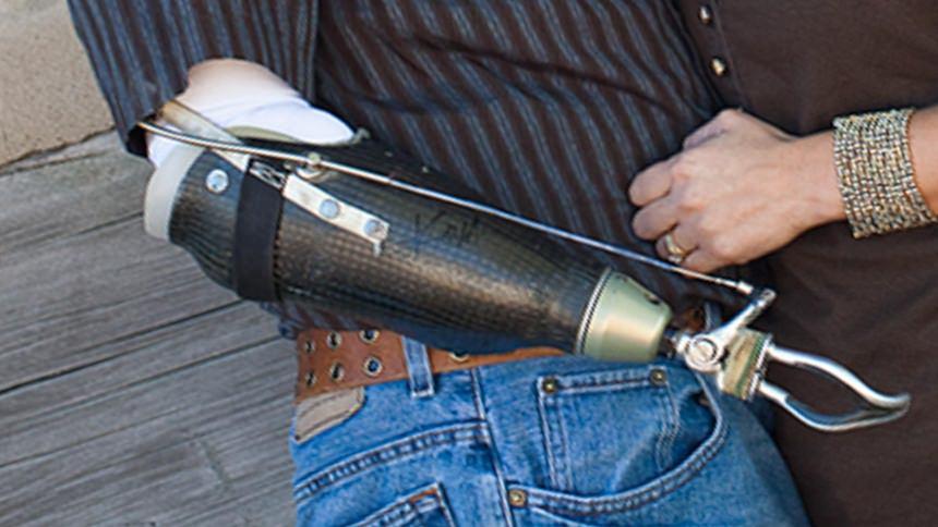 Carbon Fiber Socket Frame with Body Powered Hook