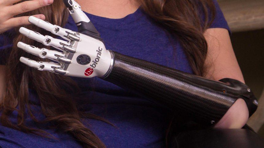 Custom Carbon Fiber Frame with bebionic hand