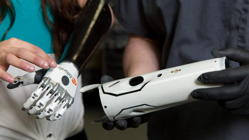 Custom Carbon Socket with bebionic hand
