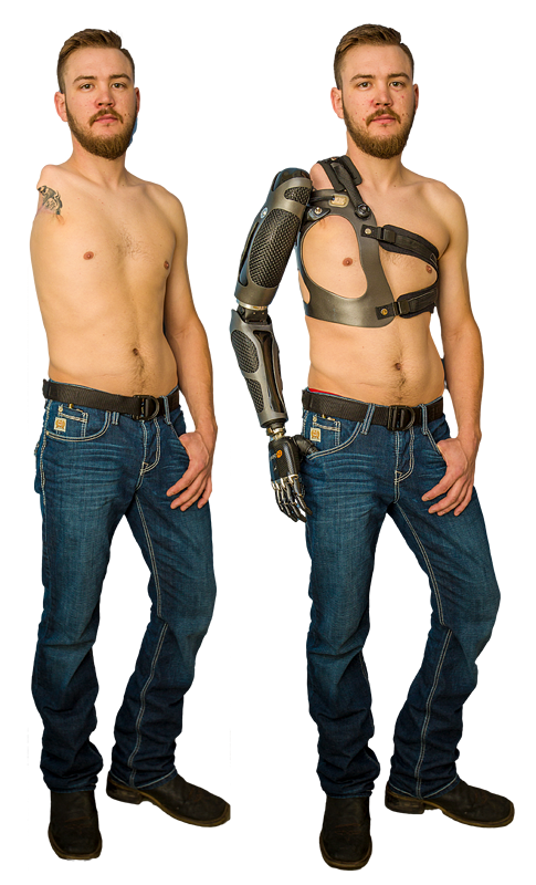 Sam Rosecrans with and without prosthesis