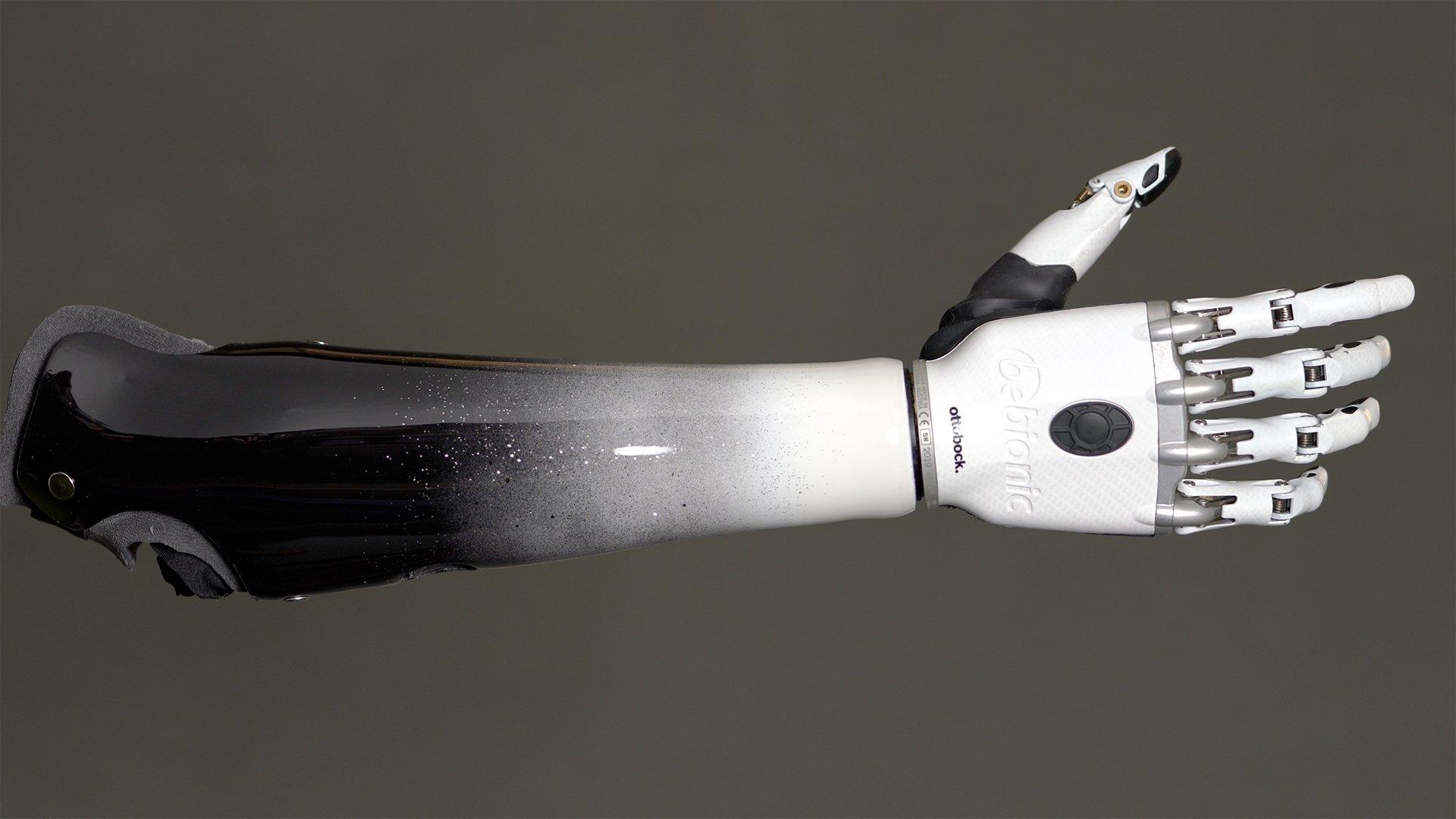 Shaholly Ayers custom socket and bebionic hand