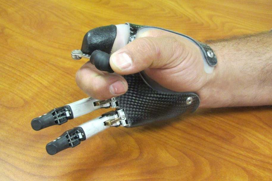 Hybrid partial hand prosthesis photo