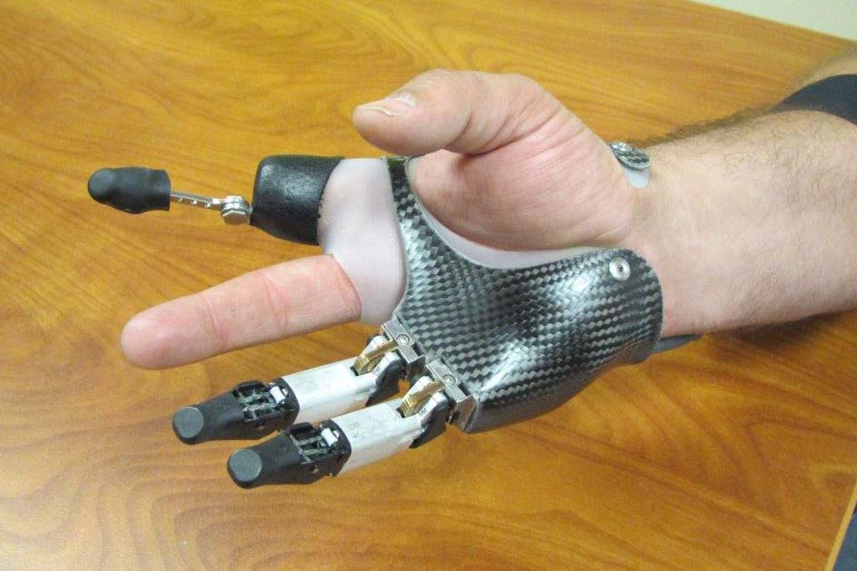 Finger and Partial Hand Prosthetic Options | Arm Dynamics