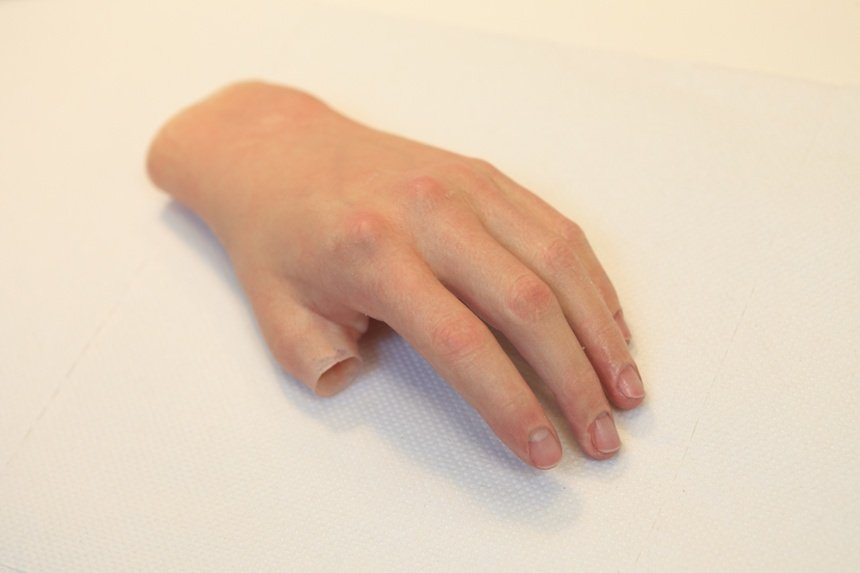 Passive Partial Hand Prosthesis photo