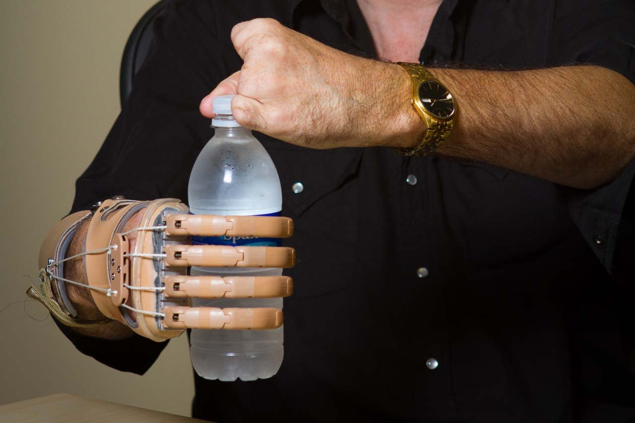Body-powered partial hand prosthesis