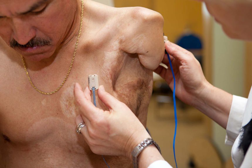 Electrode placement by Kerstin Baun - National Director of Therapueatic Services