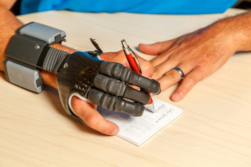 Arm Dynamics patient using his myoelectric finger prosthesis to write