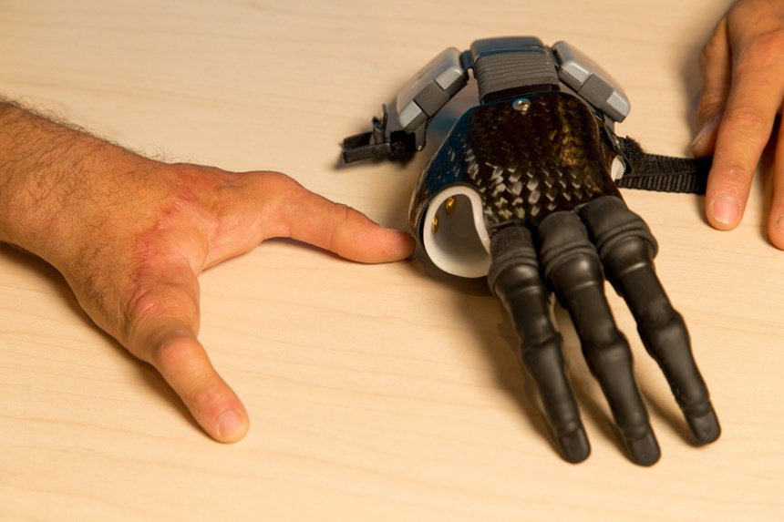 Arm Dynamics patient with myoelectric finger prosthesis
