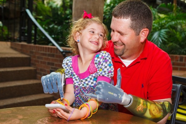 Arm Dynamics bilateral amputee patient with his daughter
