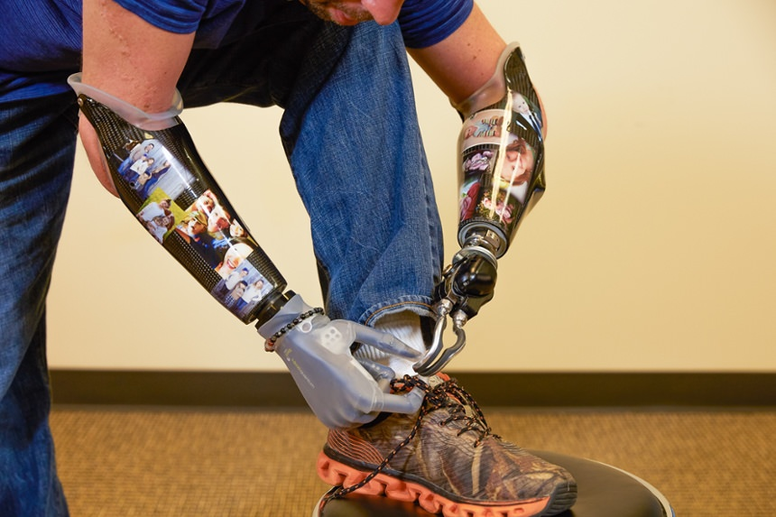 Arm Dynamics patient tying his shoe with a myoelectric hand prosthesis