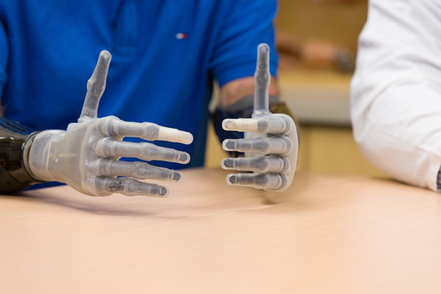 Arm Dynamics bilateral amputee with two myoelectric hand prostheses