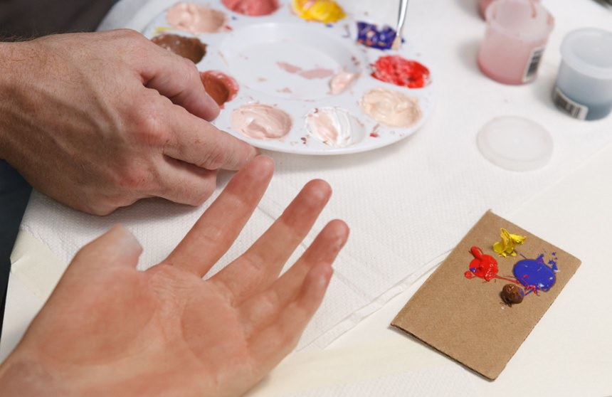 Arm Dynamics artist matching skin tone on a custom silicone restoration prosthesis