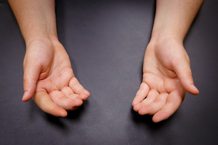 Arm Dynamics patient after silicone restoration of index finger