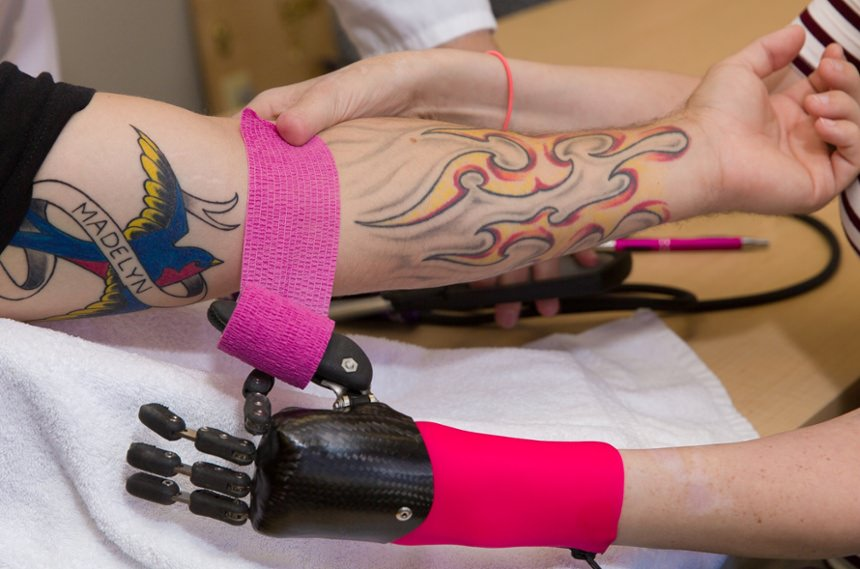 Arm Dynamics patient working with multi-positional joints prosthesis