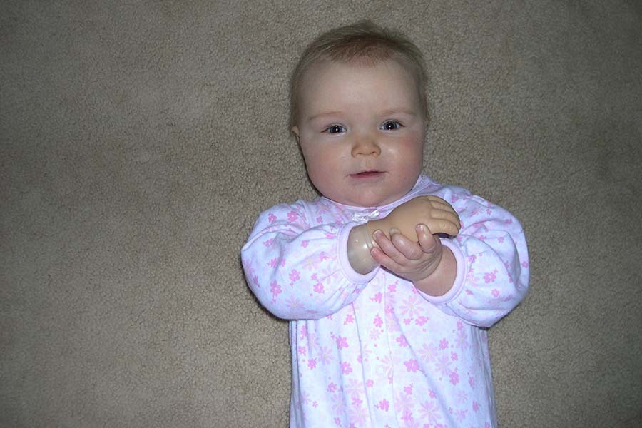 When Should My Child with a Limb Difference See a Prosthetist?