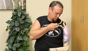 Donning and Doffing Your Upper Limb Prosthesis