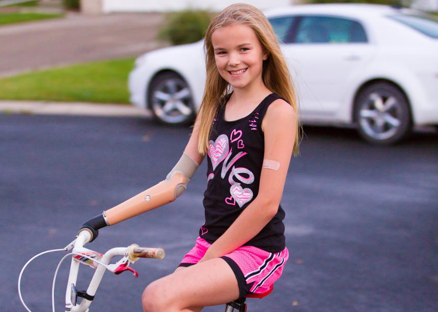 Amber Peterson Pediatric Child Prosthesis Activity Specific Bicycle Riding