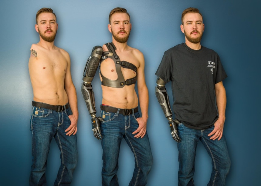 Sam Rosecrans shoulder amputation before and after prosthesis