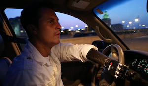 Driving After Upper Limb Loss
