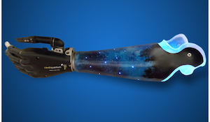 Creativity and Prosthetic Devices